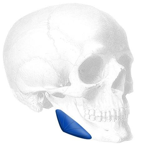 Widening Mandibular Angle Implant widening mandibular angle implant