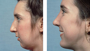 Facial implant company men