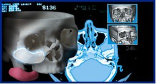 3D Accuscan Patient-Specific® Implants