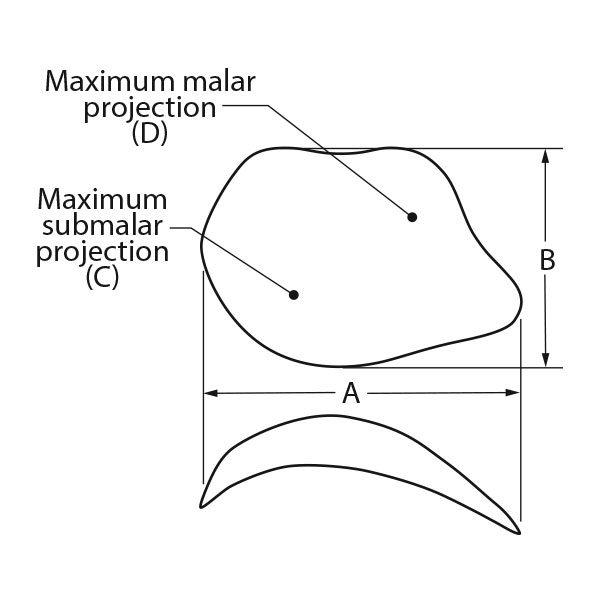 ePTFE Midfacial