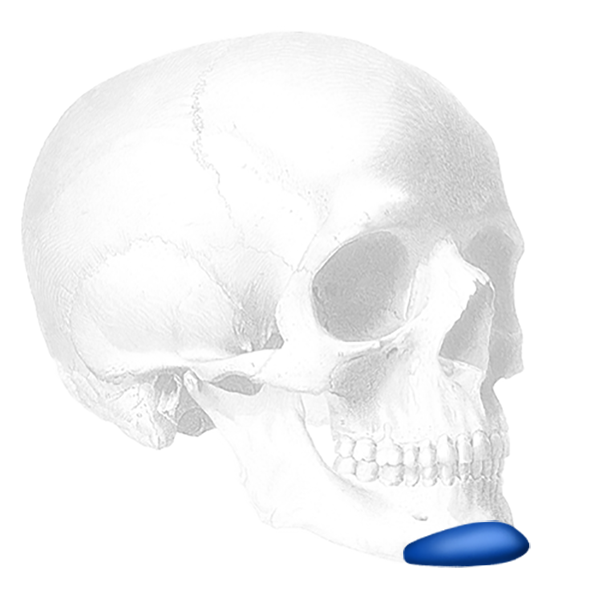 ePTFE-Coated <br> Anatomical Chin