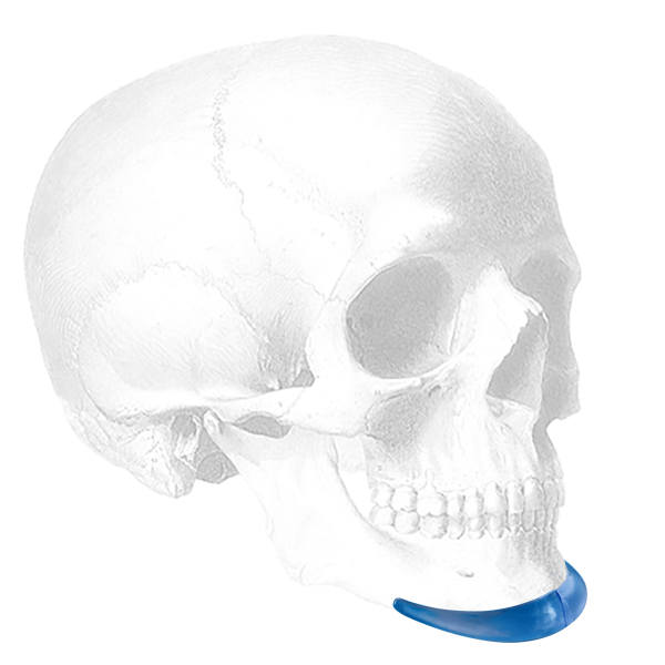 Extended Anatomical Chin Implant
