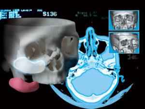 3D Accuscan Patient-Specific® Implants